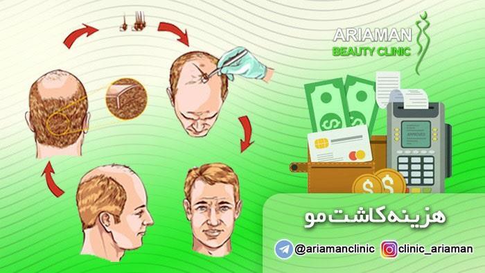 نرخ کاشت مو