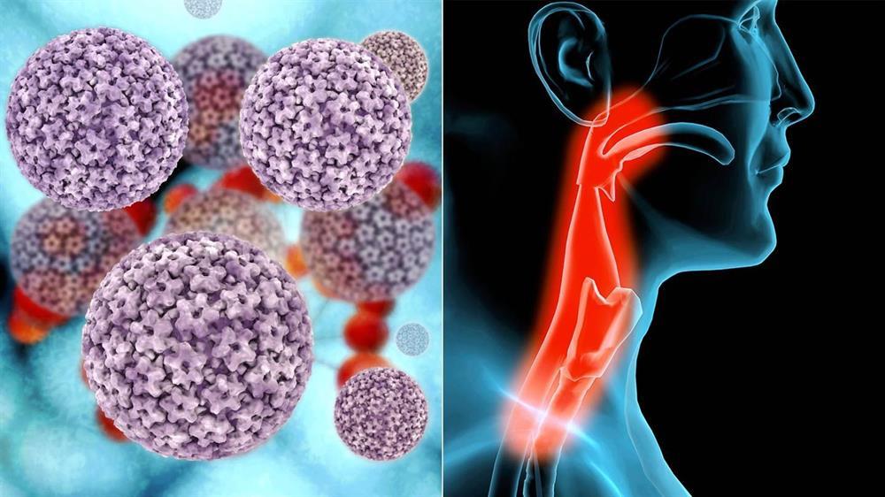 سرطان گلو در اثر ویروس اچ پی وی یا پاپیلومای انسانی