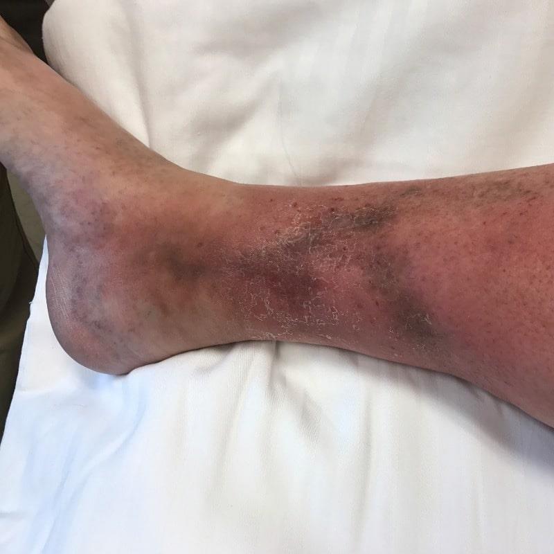 علائم زخم های وریدی