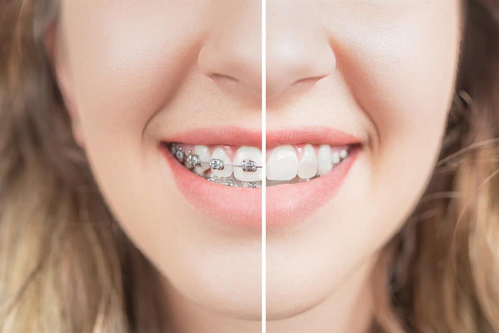 ارتودنسی دندان کودکان
