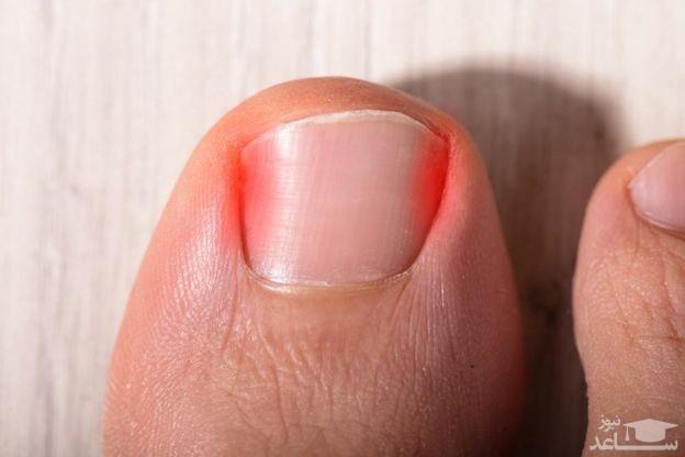 فرو رفتگی ناخن پا در گوشت
